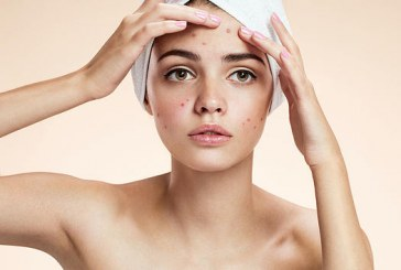 10 Easy things you can start doing today to help you heal your Acne