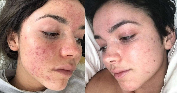 Bachelor Alum Bekah Martinez Shares Her Newfound Acne Cure with Shocking Before-and-After Photos