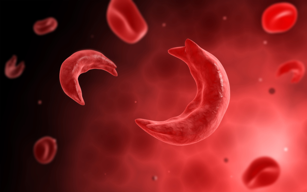 All you need to know about Sickle Cell Anemia/Disease (SCD)
