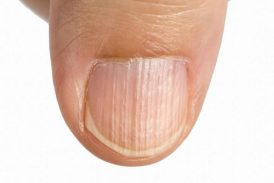 Protein deficiency: Don't Skip the Subtle Signs on your Skin and Nails